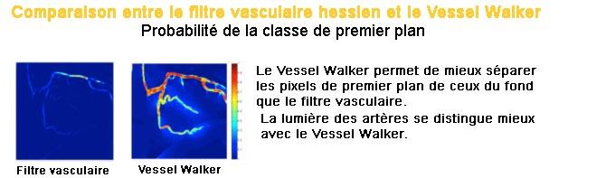 Vessel Walker