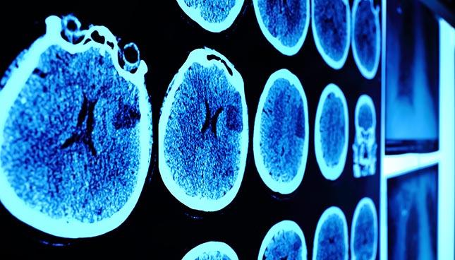 L'intelligence artificielle pour interpréter les images médicales