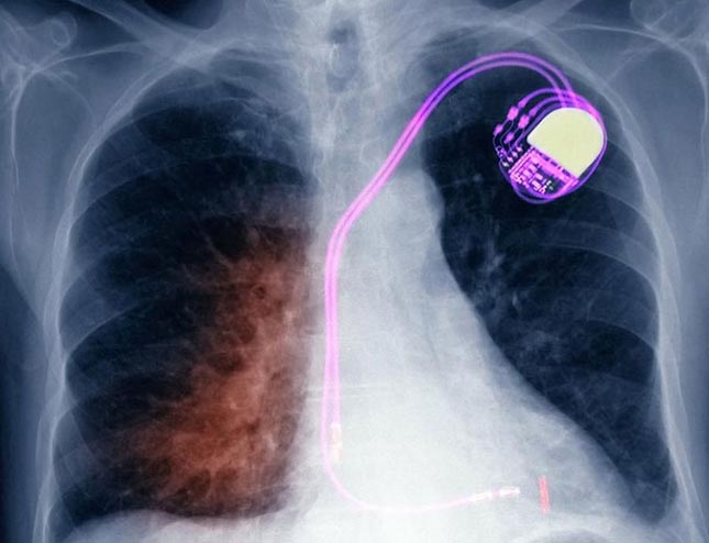 Pacemakers using biological fluids