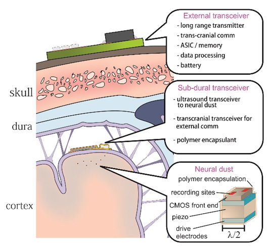 Schéma neuronal du système de poussière montrant l'emplacement des systèmes d'interrogations par ultrasons sous le crâne et les senseurs de détection de poussière neuronal indépendants dispersés dans tout le cerveau.