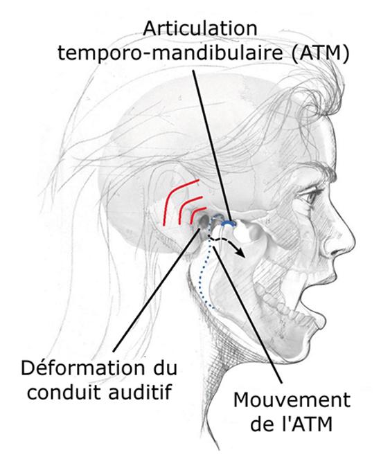 Mouvement du joint de la mâchoire et déformation du conduit auditif. Source [Img2]