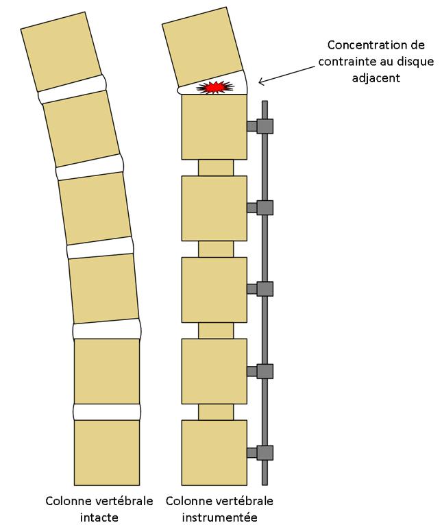 Figure 1 : Comparaison entre un colonne vertébrale inactive et une colonne vertébale instrumentée