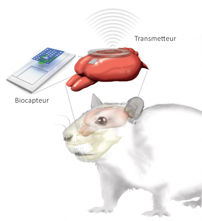 Illustration de l'implant d'un capteur crânien, muni du module de communication sans fil. Illustration signée Julie McMahon.