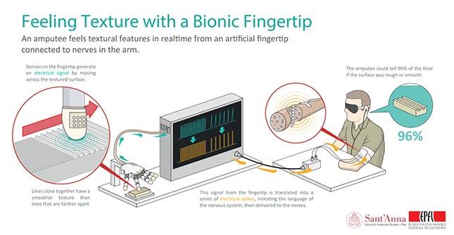 doigt bionique3