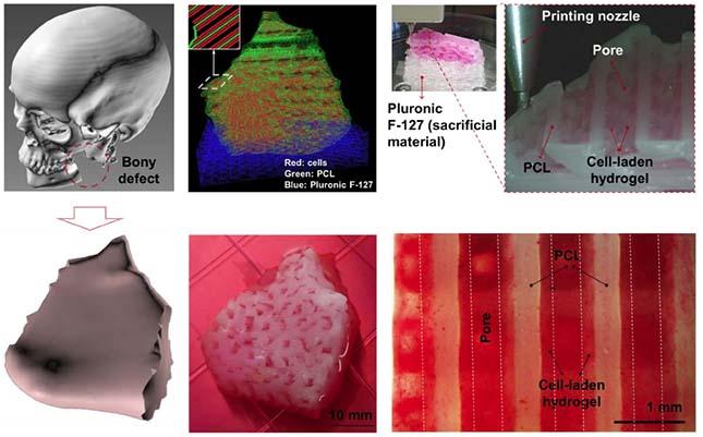 Figure1: Les étapes d'impression 3D bio d'un fragment de mâchoire