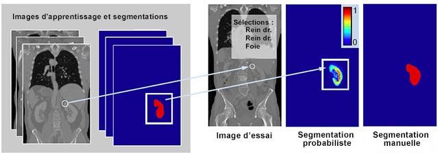 Fig. 2 Illustration de la segmentation par transfert de points d'intérêt. Premièrement, les points d'intérêt (cercles blancs) dans les images d'apprentissage et de test sont appariés (flèche). Deuxièmement, la sélection attribue une étiquette d'organe au point d'intérêt testé (rein dr.). Troisièmement, les images d'apprentissage équivalentes à l'étiquetage du rein dr. sont transférées à l'image d'essai, créant une segmentation probabiliste. Nous montrons la segmentation manuelle par comparaison.
