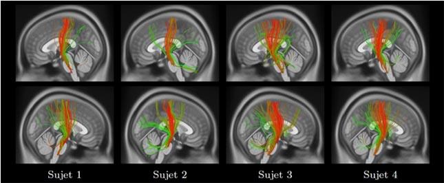 regroupement des fibres en faisceaux pour obtenir une empreinte cérébrale.