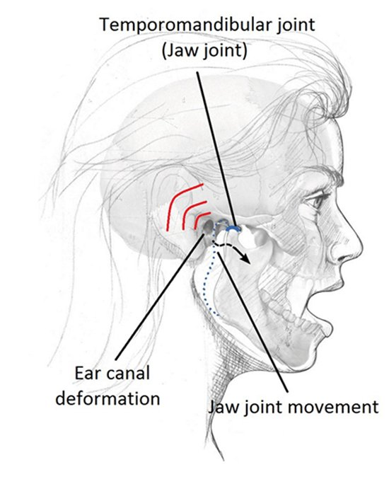 Jaw joint movement and ear canal deformation. Source [Img2]