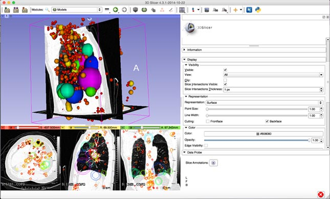 Fig. 3: 3D SIFT VIEW - Lung CT.