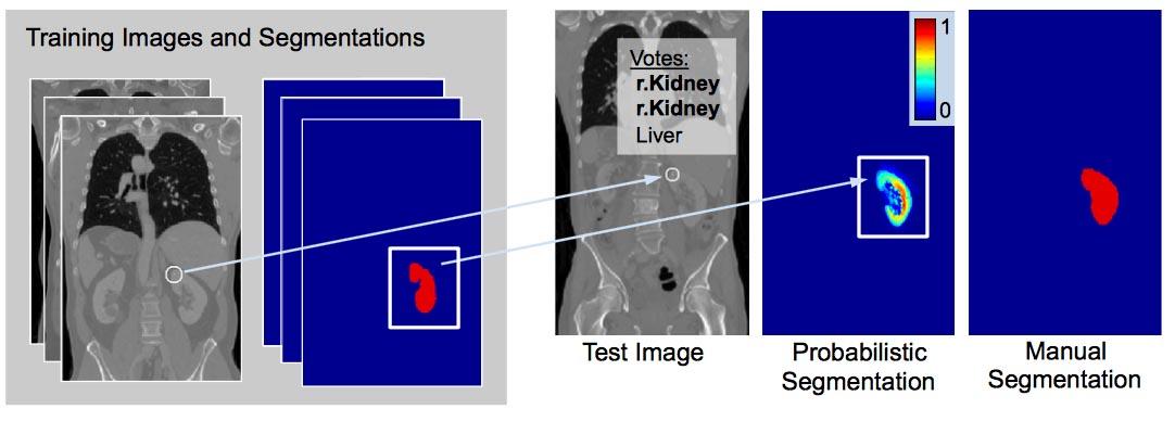 keypoint - transfer - segmentation