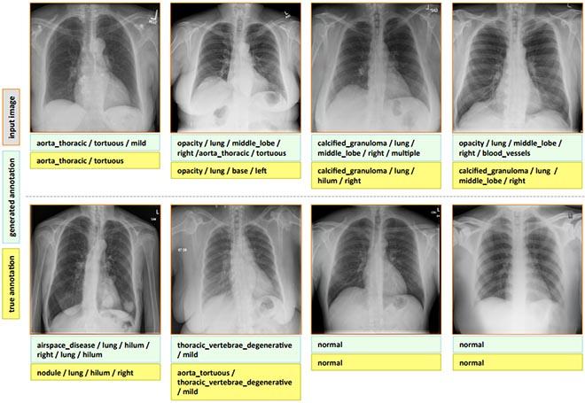 Imagerie-medicale-annotation-automatique