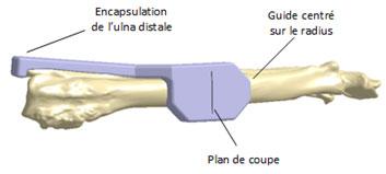 Guide de coupe pour faciliter la pose de l'endoprothèse pour chien