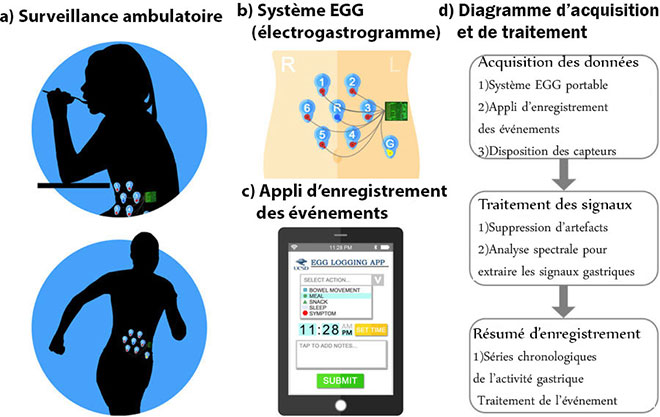 Functioning of a wearable used for gastrointestinal diagnostic