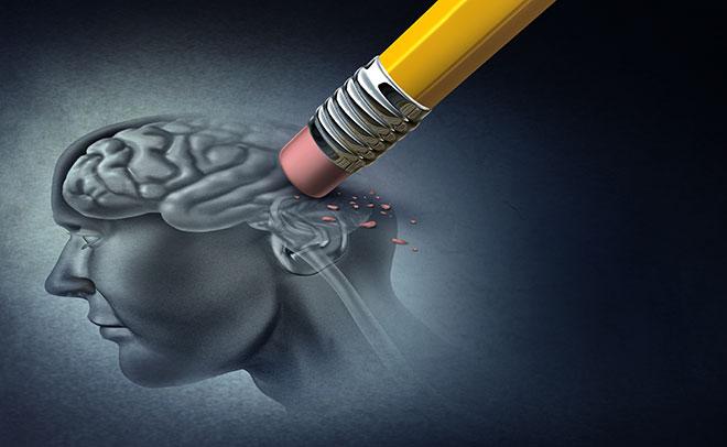 Les personnes souffrant de la maladie d'Alzheimer perdent la mémoire