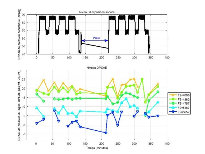 Niveaux d'émissions acoustiques selon l'exposition au bruit