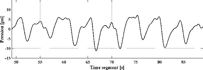 Signal from a pressure sensor mattress