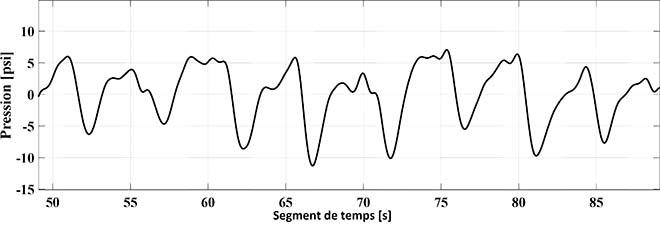 Signaux provenant d'un matelas à capteurs de pression