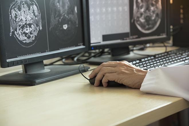 Segmentation manuelle d'une image médicale