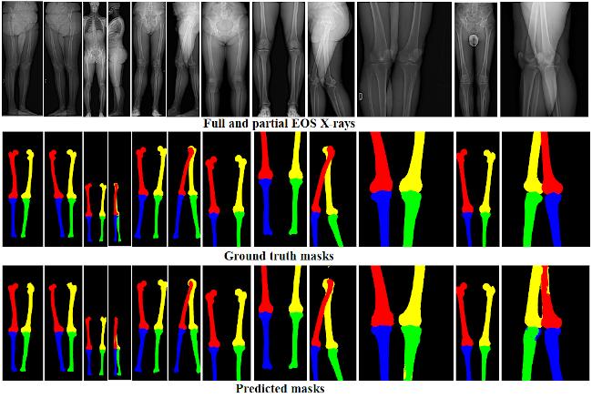 Bone identification using deep learning