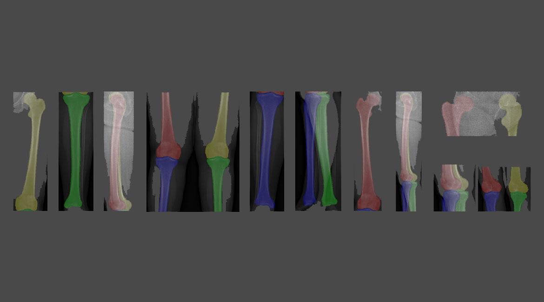 X-ray views of lower limbs