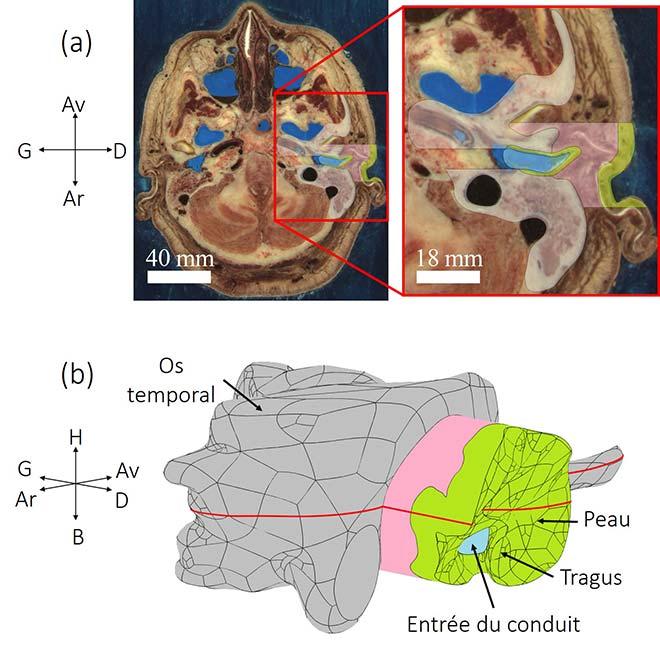 Modèle numérique construit à partir d'images anatomiques