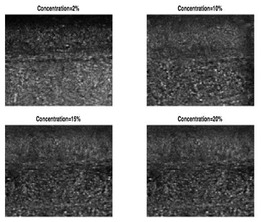 Ultrasound texture vs gelatin concentration in phantoms