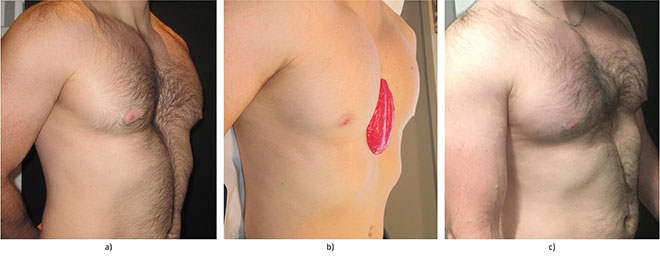 Photo of patient before and after implant