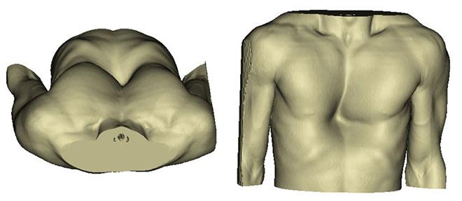 Pectus excavatum, vues transverse et frontales