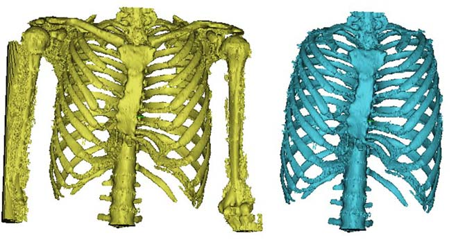 Rib cage image achieved through thresholding and after digital reconstruction