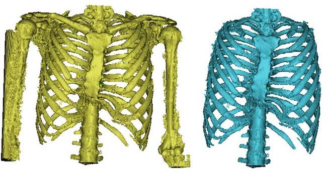 images de la cage thoracique obtenue par seuillage et reconstruction numérique