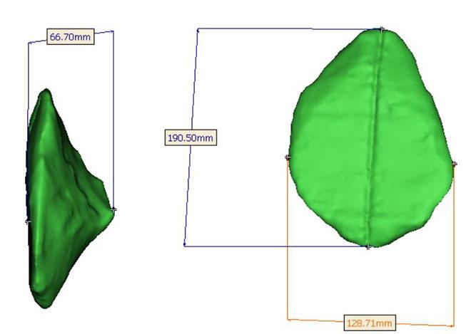 Image de l'implant final, vues de face et de côté