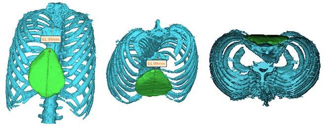 Image de l'implant surperposée sur la cage thoracique, vues de face, inclinée et de haut