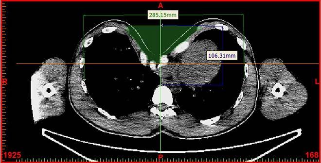 Haller index measure after implant