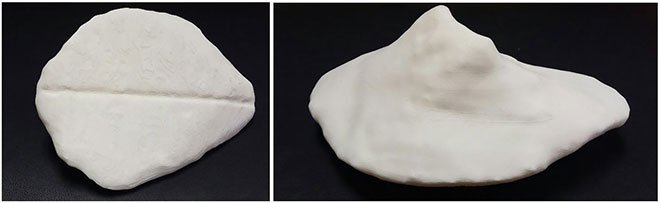 Printed implant, front and side views
