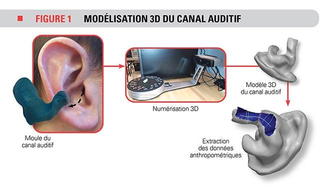 Modélisation 3D du canal auditif