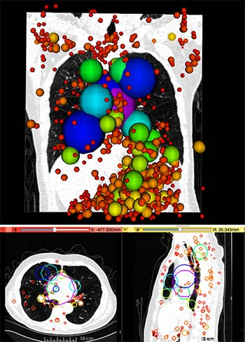 Information Particles in a 3D lung CT image